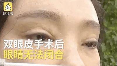 Người phụ nữ không thể nhắm mắt, khó nhìn đường sau 2 lần cắt mí