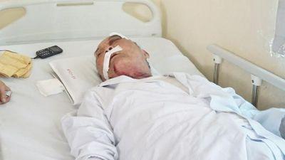 Cựu binh 80 tuổi bị lái xe ôm hành hung rạn xương sườn: 'Tôi ra hóng gió thôi chứ có tranh giành khách đâu mà đánh tôi dã man quá'