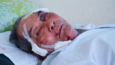 Cụ ông 80 tuổi kể lúc bị gã xe ôm đánh gãy xương