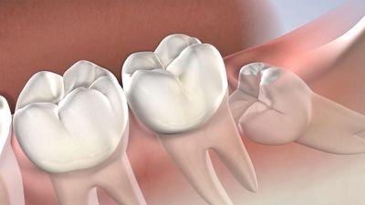 Tại sao con người có răng khôn?