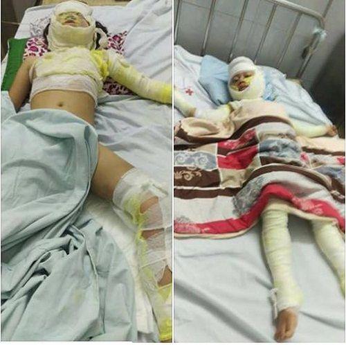Bố nướng mực gây cháy lớn, con 2 tuổi tử vong, vợ bỏng nặng