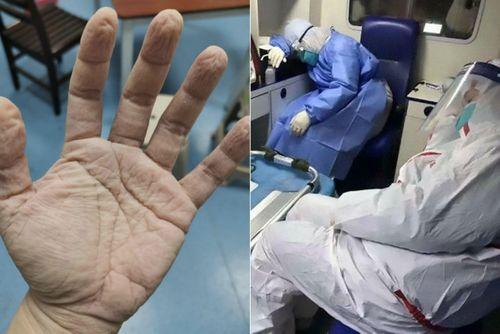 Bác sĩ Vũ Hán mặt hằn khẩu trang, đầu cạo trọc vì chống dịch corona