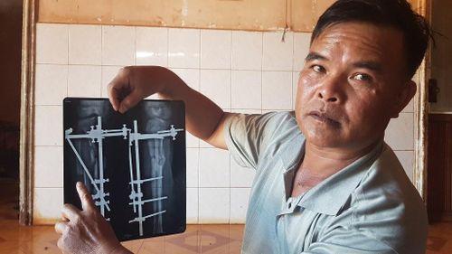 Bệnh nhân hoại tử cơ sau phẫu thuật tố Bệnh viện Đa khoa Vùng Tây Nguyên tắc trách