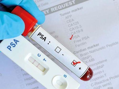 Khi nào cần xét nghiệm máu tìm ung thư?