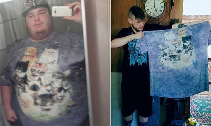 Những hình ảnh này cho thấy cuộc hành trình của Sam từ trước và sau khi  phẫu thuật giảm cân. Ảnh: MDW.