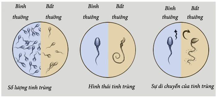 So sánh chất lượng tinh trùng