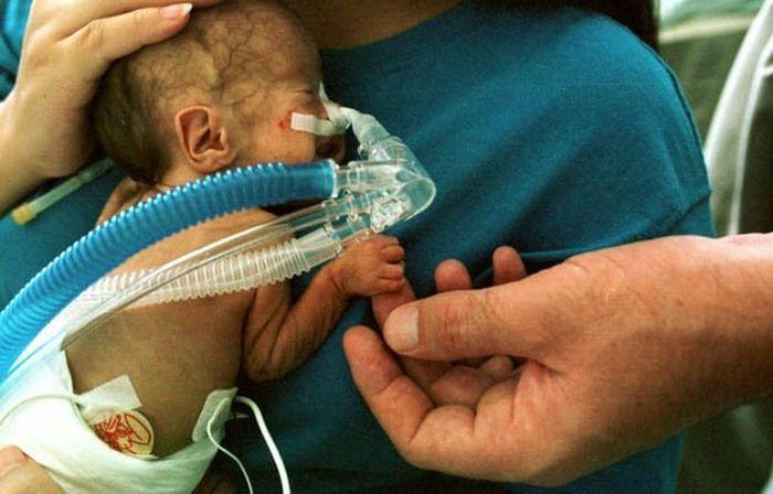 Sau khi tìm hiểu và loại trừ các nguyên nhân, các chuyên gia đã rút ra kết luận sữa mẹ được hút ra từ máy hút sữa bị nhiễm khuẩn chính là nguyên nhân khiến em bé bị mắc căn bệnh nguy hiểm. Nhiễm độc sữa mẹ được hút ra từ máy hút sữa, bé sơ sinh mắc bệnh viêm màng não